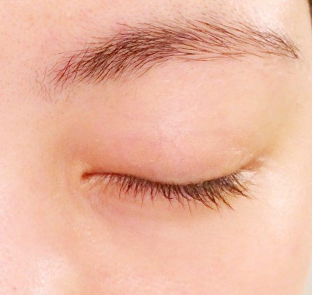 眼瞼ミオキミア