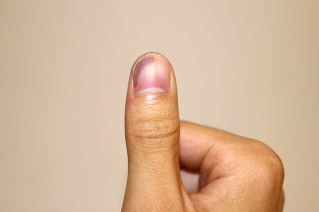 爪の中 血豆 治し方
