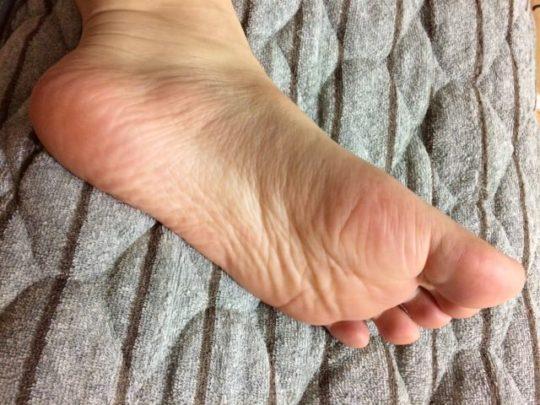 足の裏 土踏まず ピクピク 痙攣